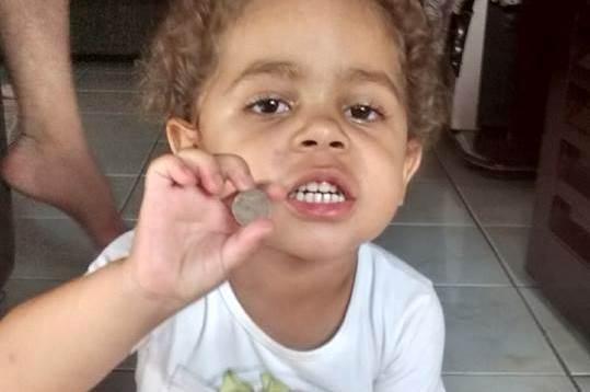 Garotinha de Lagoa Formosa consegue expelir moeda que estava em seu intestino