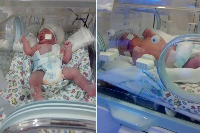 Família pede ajuda para custear despesas e tratamento de gêmeas que nasceram prematuras em Patos de Minas