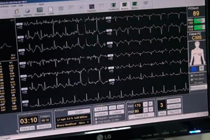 Mais de 70 pacientes já fizeram seus exames cardiológicos pelo SUS nos últimos dias em Patos de Minas