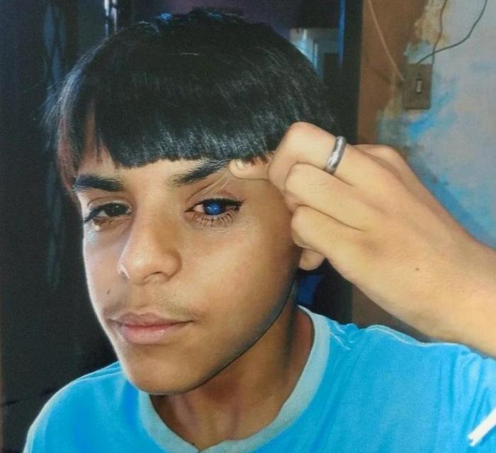 Adolescente pede ajuda para conseguir transplante de córnea que custa mais de 11 mil reais