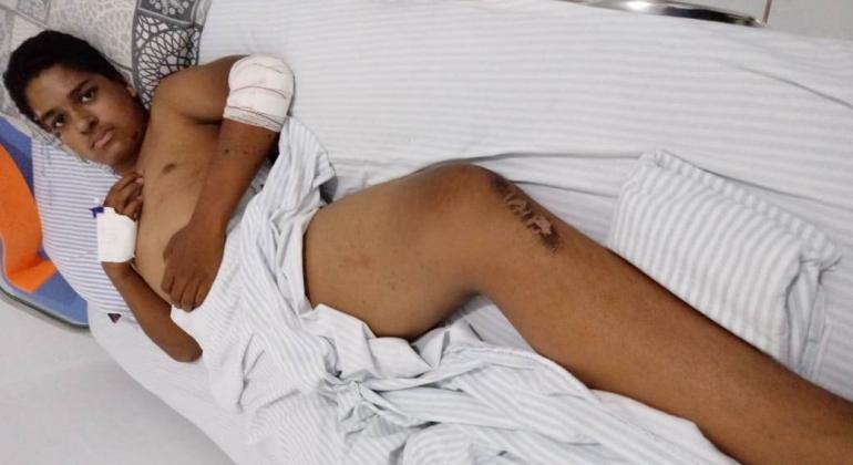 Garoto de Lagoa Formosa que teve perna fraturada em acidente pede ajuda para realizar cirurgia