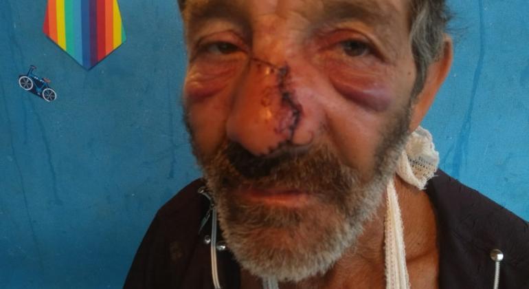 Homem sofre graves ferimentos ao ser atingido com barra de ferro por desafeto em Carmo do Paranaíba